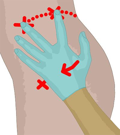 intramuskuläre injektion oberschenkel
