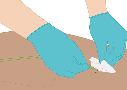 Suprapubischer katheter